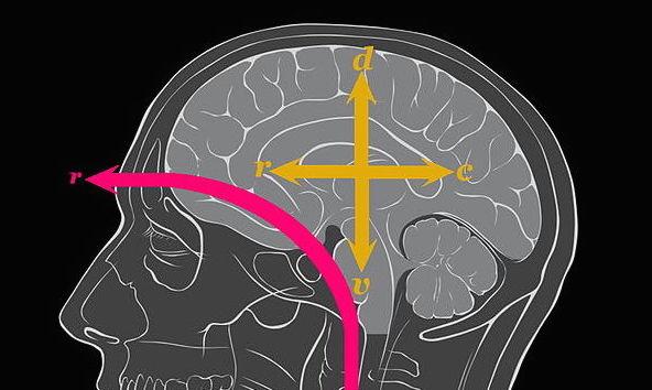 Human_brain_anatomical_axes_alterations